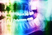 image of human teeth  - Dental X - JPG
