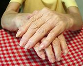 Closeup Of Arthritic Diabetic Hands