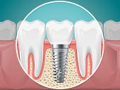 Stomatology Illustrations. Dental Implants And Healthy Teeth. Vector Health Tooth And Implant Stomat poster