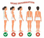 Spine Deformation Types And Healthy Spine Comparison Diagram Poster With Back Bone Curvatures. Femal poster