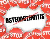 Stop Osteoarthritis