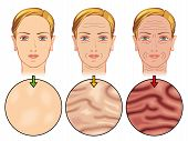 stock photo of collagen  - medical illustration of the effects of skin aging - JPG
