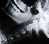Radiograph Of Human Neck