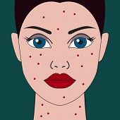 Female Face With Allergic Rash. Vector Illustration poster