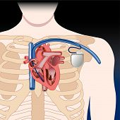stock photo of pacemaker  - Schematic sketch of pacemaker - JPG