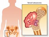picture of humerus  - medical illustration of the symptoms of femoral osteosarcoma - JPG