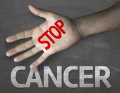 Creative composition with the message Stop Cancer