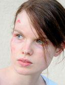 Injured woman 1