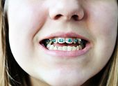 stock photo of crooked teeth  - the braces on the bad crooked teeth - JPG