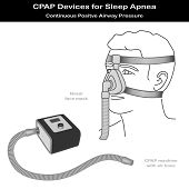 Sleep Apnea, Cpap Machine, Nose Mask