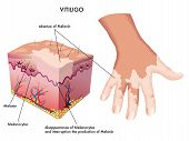 picture of pigment  - medical Illustration of the effects of vitiligo - JPG