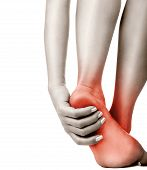 pic of callus  - Heel pain in women on white - JPG