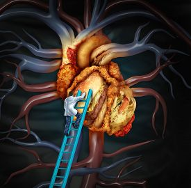 pic of stent  - High Cholesterol treatment and medical therapy as a doctor on a ladder cleaning a problem heart made of greasy fast food or a surgeon removing fat buildup in a clogged human organ as a symbol of atherosclerosis disease health treatment - JPG