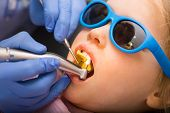 Dentist performing dental procedure to a little girl in pediatric dental clinic. Doctor using prophy poster