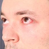 Man Suffering From Conjunctivitis