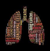 image of radiation therapy  - Lung Cancer in word collage - JPG