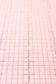 stock photo of electrocardiogram  - Electrocardiogram graph ekg heart rhythm medicine concept - JPG