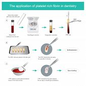 Fibrin-rich Platelets (prf) In Dentistry. Development Of Biologically Active Surgical Additives To C poster