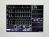 stock photo of bp  - cardiac monitor displaying patient - JPG