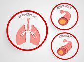 World Asthma Day concept with illustration of asthmatic bronchitis on grey background.