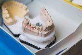pic of dental impression  - The dental laboratory production of dental prostheses - JPG