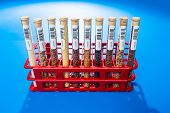 picture of legume  - agricultural grains and legumes in the laboratory - JPG