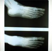 Human foot x-ray