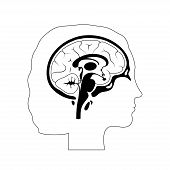 Set Of Vector Isolated Illustration Of Brain Components In Woman Head. Human Brain Detailed Anatomy. poster