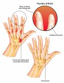picture of joint inflammation  - medical illustration of the symptoms of psoriatic arthritis - JPG