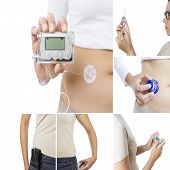 Insulin Pump Collage