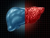 Fatty Liver Disease And Hepatic Steatosis Body Part As A Medical Health Care Concept Of The Digestiv poster