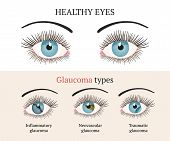 Eye Disease. Ophthalmology Flat Health Vector Illustration. Glaucoma Types Ans Healthy Eye. Vector F poster
