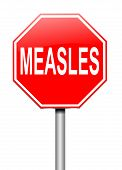 Measles Concept.