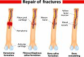 Fracture and repair