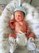 Newborn Baby With Vital Signs Sensors In Hospital poster