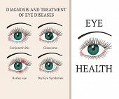 Eye Disease. Most Common Eye Problemc - Conjunctivitis, Glaucoma, Dry Eye Syndrome, Barley Eyes. Oph poster