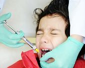 Kid visiting dentist office in hospital for pulling out milk tooth