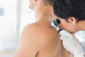 stock photo of mole  - Female doctor examining mole on back of man in clinic - JPG