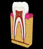 Dentistry: Tooth Cut Or Section