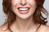 Healthy White Smile Close Up. Beauty Woman With Perfect Smile, Lips And Teeth. Beautiful Model Girl  poster