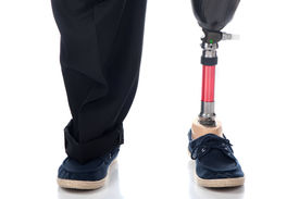 foto of amputation  - An adult man with a below knee amputation stands upright with his new prosthetic leg - JPG