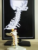 Постер, плакат: Cervical Spine Model And Mri Picture