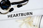 Heartburn -- A Feeling Of Discomfort Or Burning Behind The Sternum In The Esophagus, A Symptom Of Ga poster