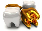 stock photo of gold tooth  - Gold and healthy teeth isolated on white background - JPG