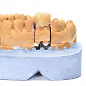 a dental mold with a prosthesis on a white background
