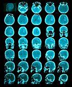 Ct Scan Of The Brain. Hemorrhagic Stroke.