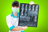 Doctor with xray on a green background