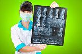 Médico com raio x sobre um fundo verde