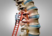 Spine Therapy And Spinal Stenosis Medical Surgery Concept As A Degenerative Illness Surgery In The H poster