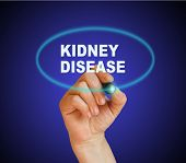 picture of sick kidney  - writing word KIDNEY DISEASE with marker on gradient background - JPG